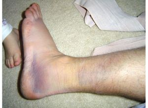 Sprained Ankle - Duncan Style