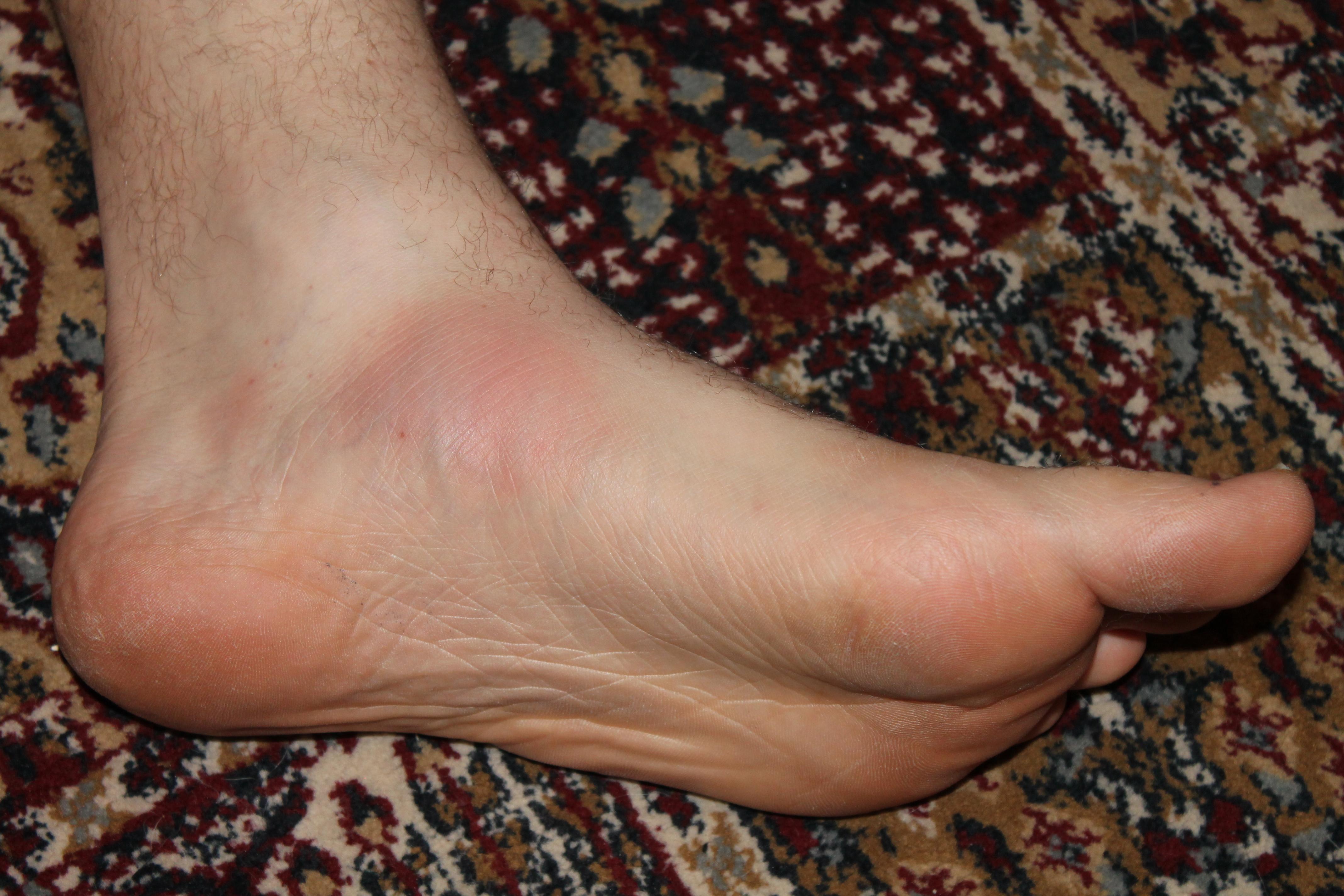 Arch in foot swollen